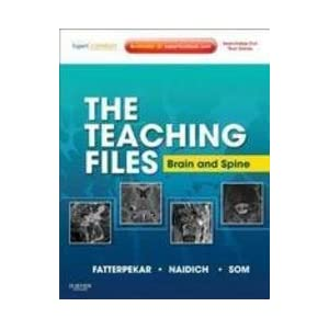 The Teaching Files: Brain and Spine Imaging: 1st Edition
