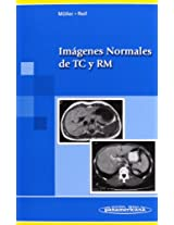 Imagenes normales de TC y RM / Normal Images of CT and MRI