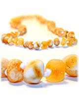 The Art Of Cure Raw Butter W/White Flecks - Certified Baltic Amber Baby Teething Necklace