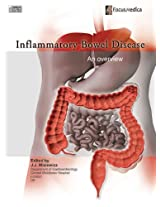 Inflammatory Bowel Disease: An Overview (Gastroenterology)