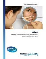 Akne: Eine der häufigsten Hauterkrankungen - unterschiedlichster Form