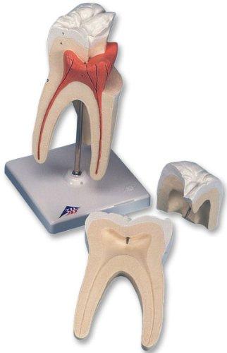 3B社 歯模型 上顎大臼歯(3根)モデル縦断3分解 (d10-5)