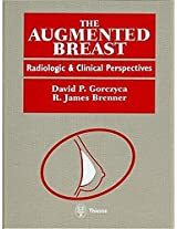 The Augmented Breast: Radiological and Clinical Perspectives
