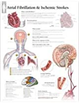 Atrial Fib & Ischemic Strokes Laminated Poster (Anatomical Wall Charts)