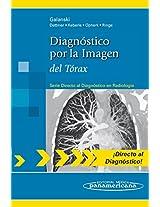 Diagnostico por la imagen del torax / Imaging diagnosis of the thorax (Directo Al Diagnostico En Radiologia / Direct Diagnosis in Radiology)