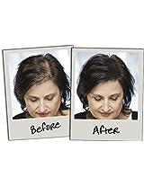 FUTURE Hair building fibers refill pack (50 Gm)