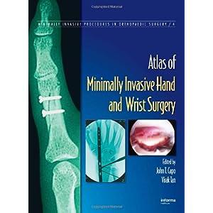 【クリックで詳細表示】Atlas of Minimally Invasive Hand and Wrist Surgery (Minimally Invasive Procedures in Orthopaedic Surgery): John T. Capo, Virak Tan: 洋書